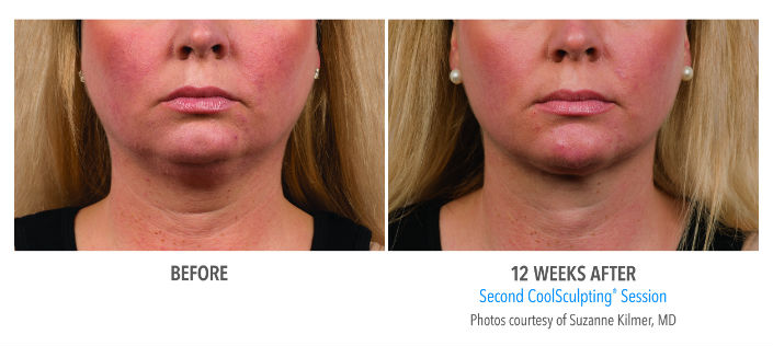Before---After-chin-resize.jpg